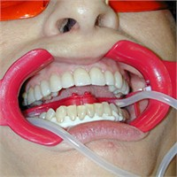 Diş Beyazlatma Estetiği
