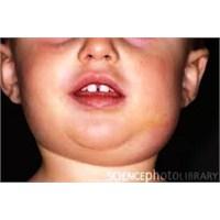 Kabakulak Nasıl Bir Hastalıktır?