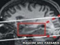Beyin Okumaya Bir Adım Daha Yaklaşıldı