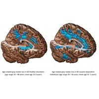 Kronik Kokain Kullanımı Beynin Yaşlanması