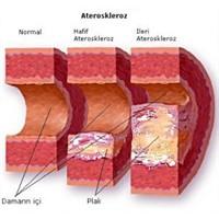 Kolesterol Ve Kolesterolün Önemi