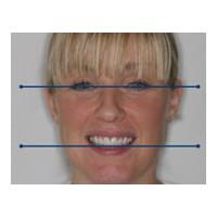 Diş Estetiği İle Gülüş Tasarımı