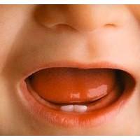 Bebeklerde Diş Çıkarma Problemleri