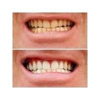 Diş Lekeleri Nasıl Giderilir ?