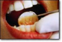 Diş Hastalıkları Nelerdir?