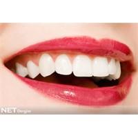 Diş beyazlatmada son trendler