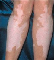Vitiligo İçin Bitkisel Öneriler