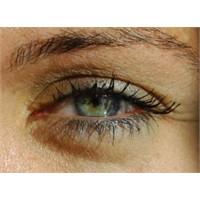 Göz Tansiyonu Nedir, Belirtileri Ve Tedavisi!