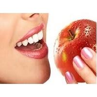 Diş Lekesi Yapan Besinler Neler
