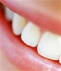 Dişleriniz Parlasın