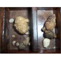 Mesana Taşları Hastalığı