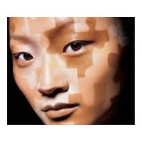 Vitiligo Hastalığının Bilinmeyenleri