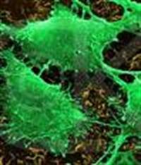 John Hopkins-kanser Hakkında Bilinmesi Gerekenler