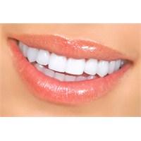 Dişlerinizi Beyazlatmaya Ne Dersiniz