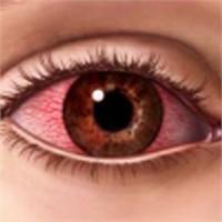 Göz Kanlanması İhmale Gelmez
