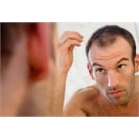 Saç Dökülmesi Nedenleri Ve Tedavisi Nelerdir
