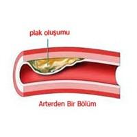 Yüksel Kolesterole Karşı Diyet Tedavisi