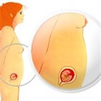 Hamilelik Nasıl Belli Olur ?