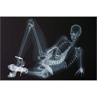 Röntgenciliğin Böylesi!