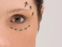 Göz Kapağınız Düşükse Estetetik Olarak Düzeltebili