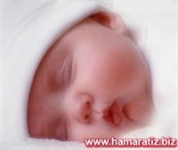 Bebeklerin Sarılık Hastalığı