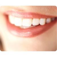 1 Saatte Bembayaz Dişler İçin Ne Yapılmalı