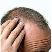 Saç Dökülmesi Nedenleri Ve Tedavi Yöntemleri