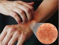 Alerjik Şikayet Ortadan Kalkıyor