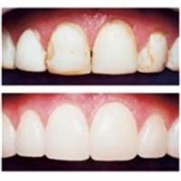 Bonding Diş Nedir Ve Nasıl Görünür