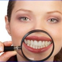 Diş Beyazlatma Nasıl Oluşur Veya Diş Nasıl Beyazla