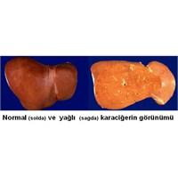 Dikkat! Sizin De Karaciğeriniz Yağlanmış Olabilir