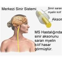 Ms Hastalığı Ve Tedavisi Hakkında Bilmek İstedikle