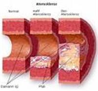 Kolesterolü Düşüren Mucize Kür