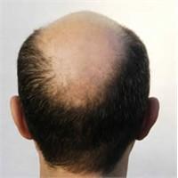 Saç Dökülmesi Hakkında Yanlış Bilinenler Ve Önleme