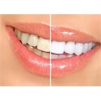Evinizde Bembeyaz Dişlere Sahip Olun