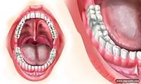 Çürüklere Karşı Diş Ojesi İle Korunun