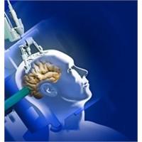 Beyin Tümörleri Yönlendirmeli Lazer İle Yok Edilck