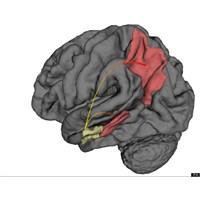 Alzheimer Beynin Neresinde Başlar, Nasıl Yayılır