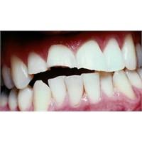 Kirik Diş Nasil Tedavi Edilir?