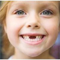 Diş Çürümelerini Nasıl Engelleyebiliriz?