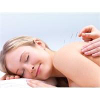 Akupunktur Zayıflama Yöntemleri