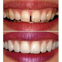 Diş Kuronları ( Diş Kaplamaları)