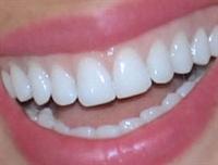 Bembeyaz Dişlere Sahip Olmanın Çözümü