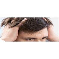 Saç Dökülmesi Ve Tedavi Yöntemleri