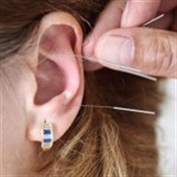 Hamilelikte Depresyona Karşı Akupunktur