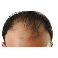 Saç Dökülmesi Psikolojiyi Bozuyor