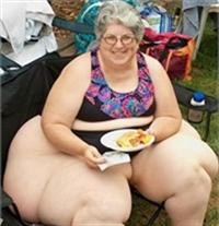 Şişmanlık Obezite Ve Zayıflama