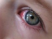 Göz Neden Kanlanır?