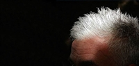Saç Ağarması Ve Gen İlişkisi