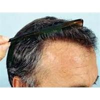 Saç Dökülmesinin Temel 5 Nedeni